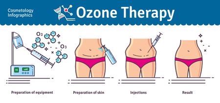 Illustrated set with Cosmetology Ozone Therapy. Infographics with icons of medical cosmetic procedures for skin. 일러스트
