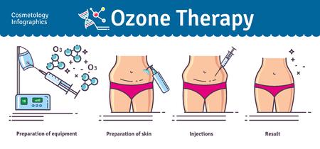 Illustrato set con la terapia cosmetologia ozono. Infografica con le icone di procedure cosmetiche mediche per la pelle.