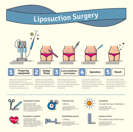 liposuction: Illustrated set with liposuction surgery. Infographics with icons of plastic surgery procedures.