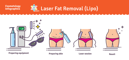 removal: Illustrated set with Laser LIPO Fat Removal. Infographics with icons of medical cosmetic procedures for body.