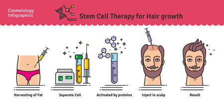 Vector Illustrated set with cosmetology stem cell therapy for hair growth. Infographics with icons of medical cosmetic procedures.