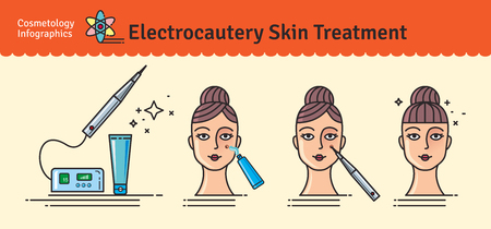surgical removal: Vector Illustrated set with salon cosmetology electrocautery skin treatment. Infographics with icons of medical cosmetic procedures for skin.