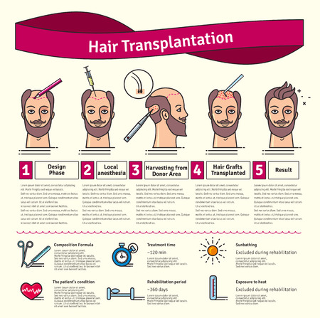 Vector Illustrated set with hair transplant surgery. Infographics with icons of plastic surgery procedures. Stock Illustratie