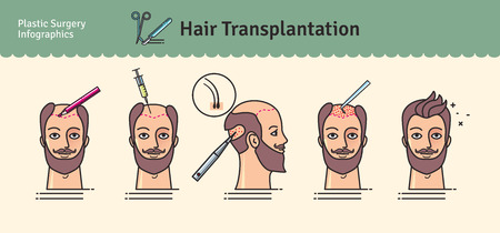 Vector Illustrated set with hair transplant surgery. Infographics with icons of plastic surgery procedures. Ilustracja