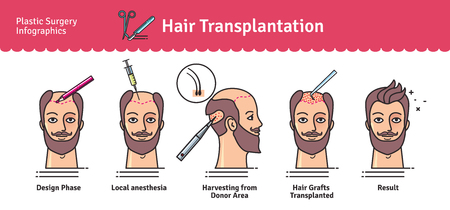 Vector Illustrated set with hair transplant surgery. Infographics with icons of plastic surgery procedures. Иллюстрация