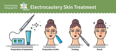 Conjunto ilustrado con el tratamiento de piel de electrocautería cosmetología de salón. Infografía con iconos de procedimientos cosméticos médicos para la piel.