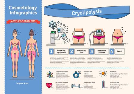 Vector conjunto ilustrado con salón de cosmetología tratamiento criolipólisis. Infografía con los iconos de los procedimientos cosméticos médicos para el cuerpo. Foto de archivo - 70962018