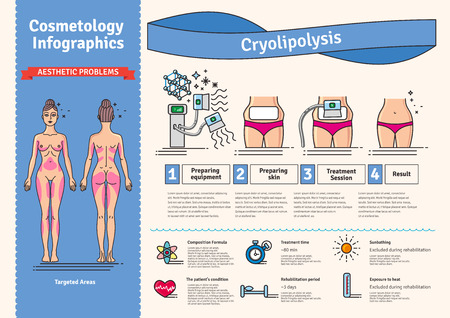 Vector geïllustreerde set met salon cosmetologie Cryolipolyse behandeling. Infographics met pictogrammen van medische cosmetische procedures voor het lichaam. Stock Illustratie