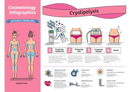 Vector Illustrated défini avec salon cosmétologie traitement Cryolipolysis. Infographies avec des icônes de procédures cosmétiques pour le corps médical.