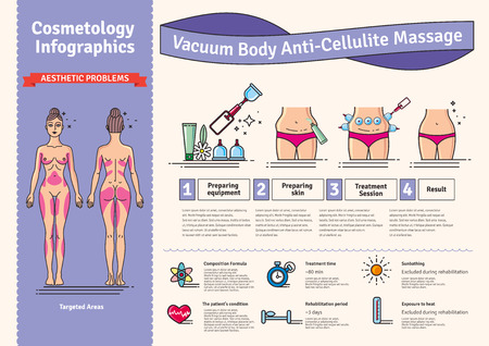 Vector Illustrated set with salon vacuum body anti-cellulite massage. Infographics with icons of procedures for body. Stock Photo
