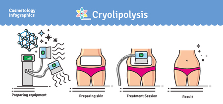 Vector Illustrated set with salon cosmetology Cryolipolysis treatment. Infographics with icons of medical cosmetic procedures for body.