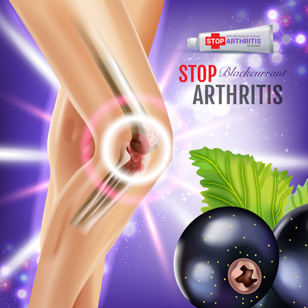 Arthritis Pain Relief Ointment ads. Vector 3d Illustration with Tube cream with blackcurrant extract. Poster with products package.