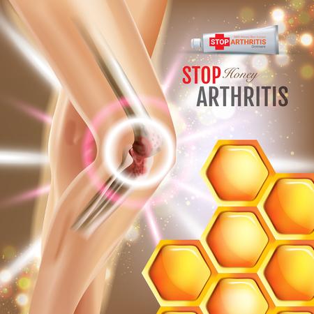 Artritis alivio del dolor ungüento anuncios. Vector ilustración 3d con crema de tubo con extracto de miel. Póster con el paquete del producto. Foto de archivo - 77844549