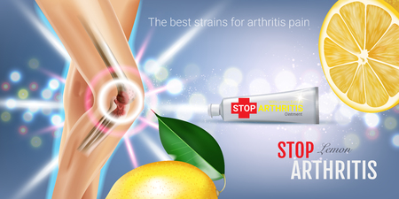 osteoarthritis: Arthritis Pain Relief Ointment ads. Vector 3d Illustration with Tube cream and lemon extract. Horizontal banner with products package.