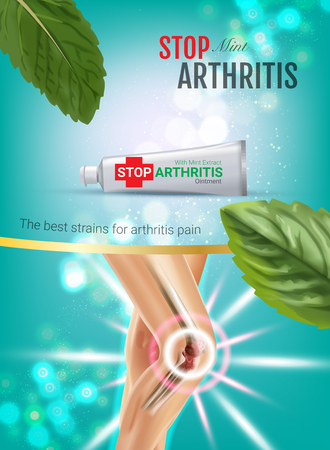 Arthritis Pain Relief Ointment ads. Vector 3d Illustration with Tube cream with peppermint extract.
