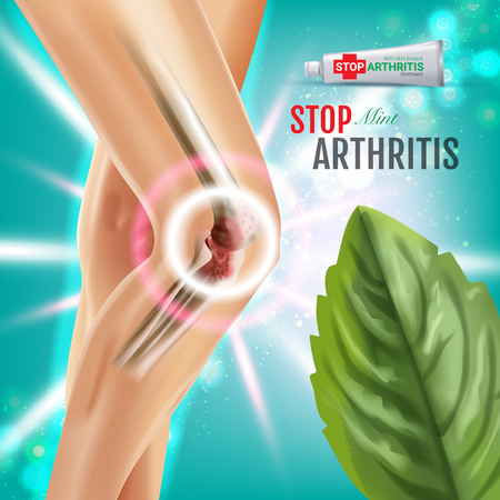 Arthritis Pain Relief Ointment ads. Vector 3d Illustration with Tube cream with peppermint extract. Vertical poster with product's package.