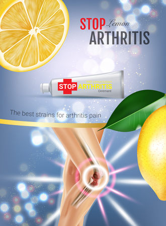 osteoarthritis: Arthritis Pain Relief Ointment ads. Vector 3d Illustration with Tube cream with lemon extract. Vertical poster with products package.