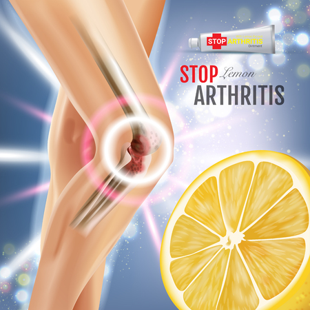 Arthritis Pain Relief Ointment ads. Vector 3d Illustration with Tube cream with lemon extract. Poster with products package.