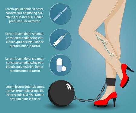 Infographics phlebology, treating varicose veins on women's legs. Slender female legs in red shoes. Vettoriali