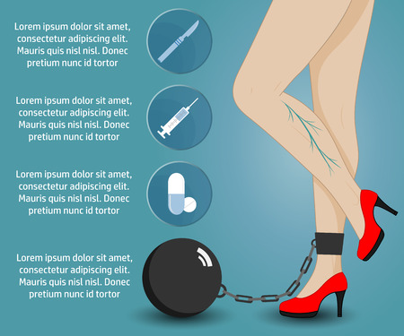 female legs: Infographics phlebology, treating varicose veins on womens legs. Slender female legs in red shoes. Illustration