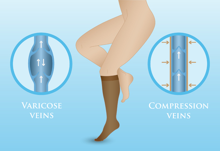 compression: Medical compression hosiery for slender female feet. Womens compression socks