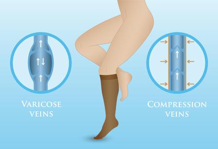 Medical compression hosiery for slender female feet. Womens compression socks