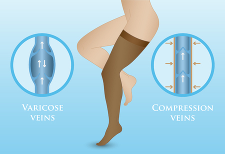 Medical compression hosiery for slender female feet. Womens compression stockings Illustration