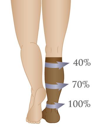 reflux: Medical compression hosiery for slender female feet, socks.