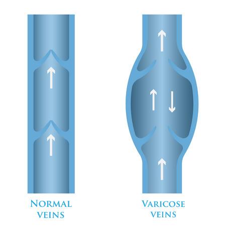 vein valve: Vector illustration of a varicose vein and normal vein.