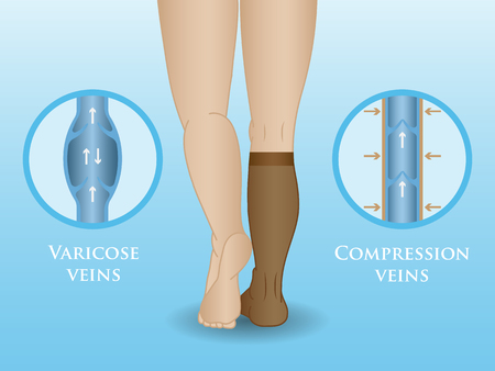 Medical compression hosiery for slender female feet, socks.