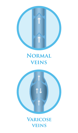 vein: Vector illustration of a varicose vein and normal vein.