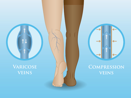 Medical compression hosiery for slender female feet, stockings. Illustration