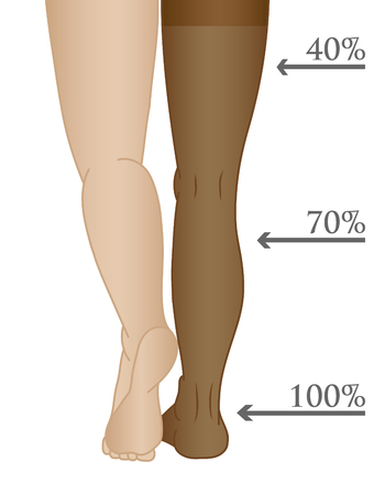 Medical compression hosiery for slender female feet, stockings. Illustration