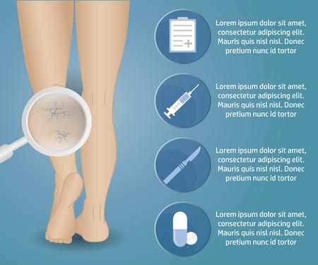female legs: Infographics phlebology, treating varicose veins on womens legs. Slender female legs, spider veins.