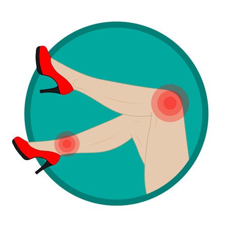 sore: Slender female legs in red shoes, foot pain, sore joints. Illustration