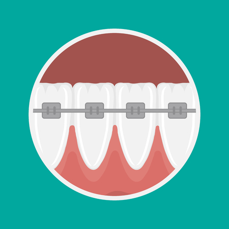 pulp: icon incisors and mandibular teeth gums. Braces for teeth alignment.