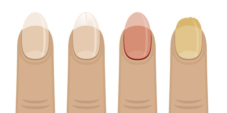 fungus: Set of vector icons with nail diseases. Women affected by fungus nails, brittle, sick.