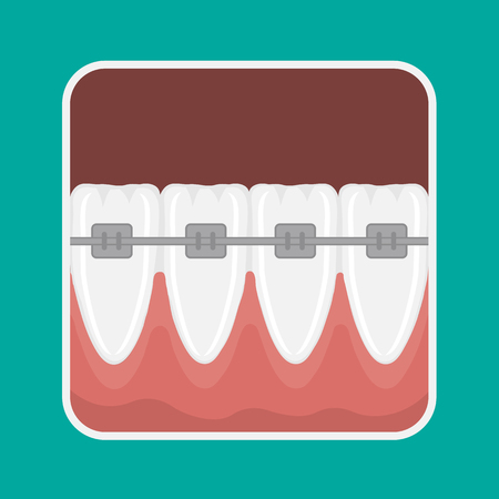 mandible: icon incisors and mandibular teeth gums. Braces for teeth alignment.