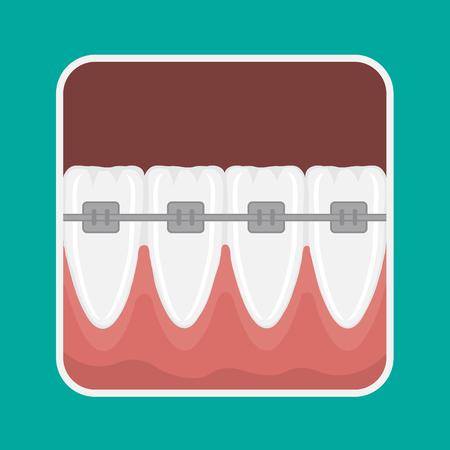 dental pulp: icon incisors and mandibular teeth gums. Braces for teeth alignment.