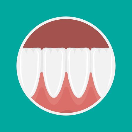 icon incisors and mandibular teeth gums. Illustration