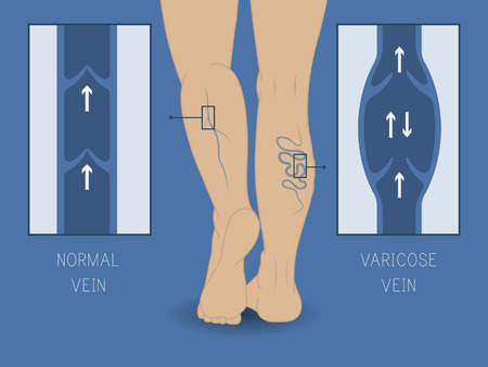 varicose vein and normal vein. Slender and beautiful female legs.