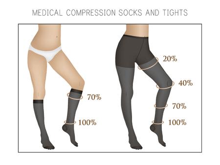 médica medias de compresión y medias. Esbelta y hermosas piernas femeninas. Venas varicosas. Ilustración de vector