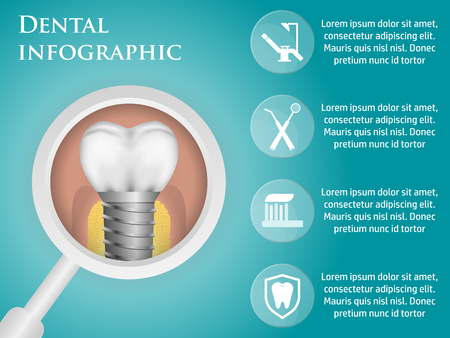 drill: Dental vector infographics with a dental implant. Illustration