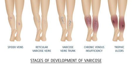 Types of varicose veins in women. Stages of development of varicose veins vector illustration.