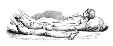 dislocation: 19th century engraving of a medical procedure, repairing a dislocated shoulder, photographed from a book titled the Stock Photo