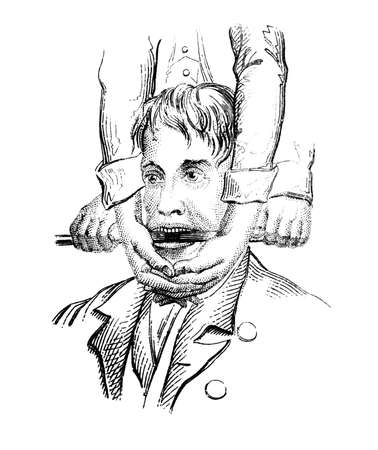 luxacion: Grabado del siglo 19 de un procedimiento m�dico, la reparaci�n de una mand�bula dislocada, fotografiado desde un libro titulado el