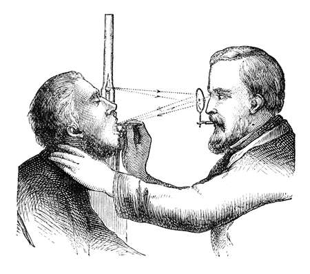 19th century engraving of a doctor using a laryngoscope Stock Photo