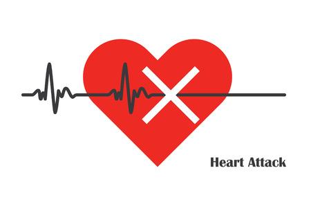 맥박은 거대한 심장 마비 의학 ilustration입니다 함께 중지