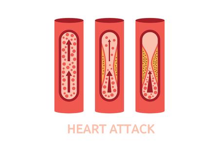 healthy arteries: heart attack symptoms arteries disease medicine healthcare illustration
