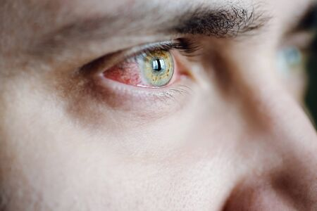 Closeup of irritated red bloodshot stressed eye at coronavirus covid-19